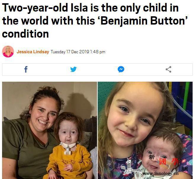 """心疼!英2岁女童患罕见""""本杰明·巴顿_巴顿-英国-女童-"""