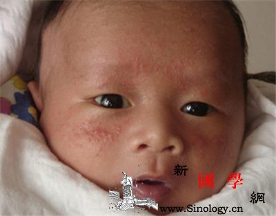 新生儿痤疮的症状有哪些?_丘疹-皮疹-痤疮-粉刺-