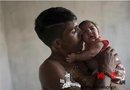 小头畸形的宝宝的寿命_肾上腺-胎儿-畸形-智力-
