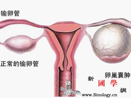怀孕6周右侧卵巢囊肿怎么治疗_囊肿-卵巢-孕妇-肿瘤-